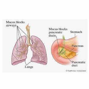 Cystic Fibrosis app logo image